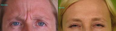 Botox-4-W-e1347487519967.jpg