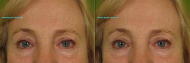 Botox-Brow-lift-257-M-e1347487544550.jpg