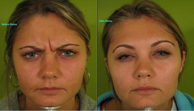 Botox-Frown-lines-384-W.jpg