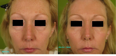 Dot-Fractional-Resurfacing-Full-Face-273-E-bar.jpg