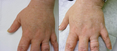 IPL-Photorejuvenation-Pigment-Left-Hand-358-P.jpg