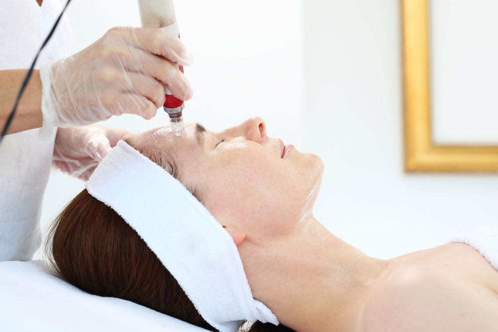 Eight Primary Benefits of Microneedling