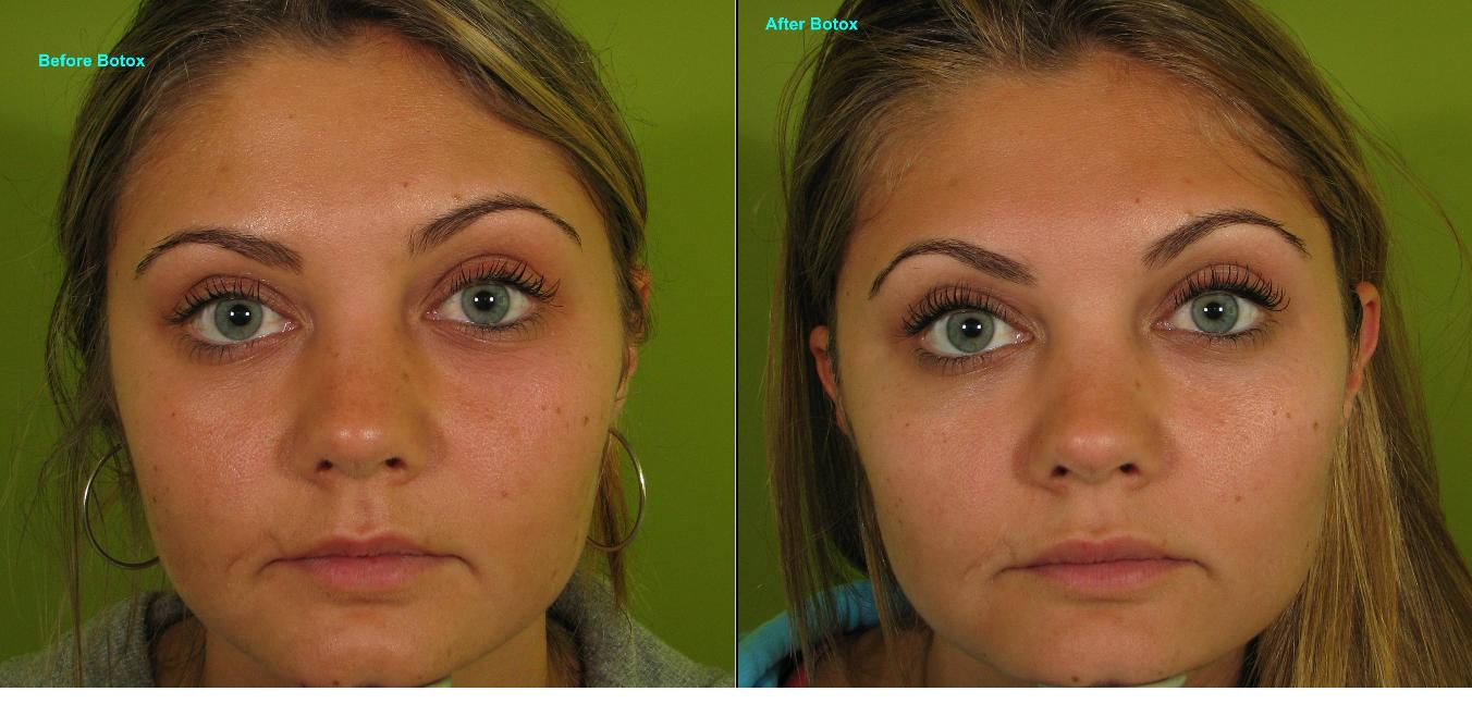 Eyebrow Lift Botox Before And After