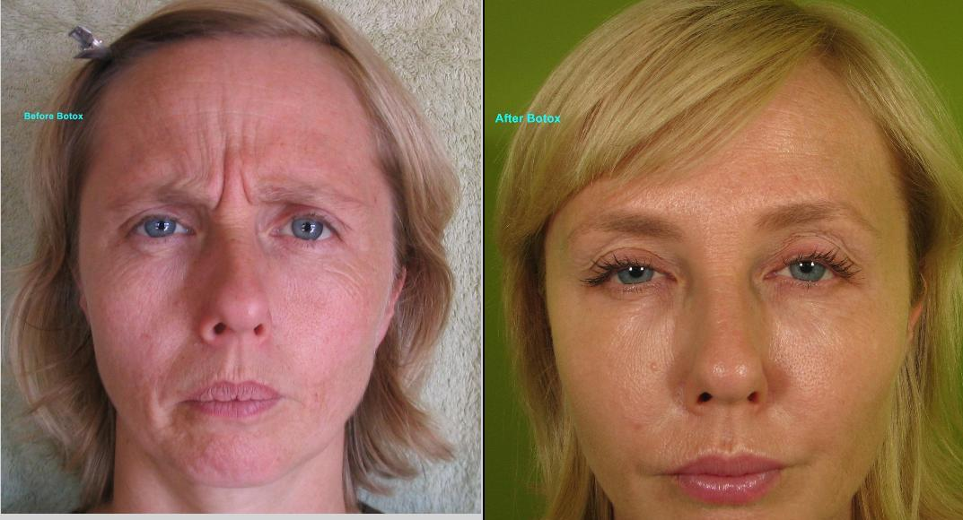 Best Natural Treatment For Frown Lines