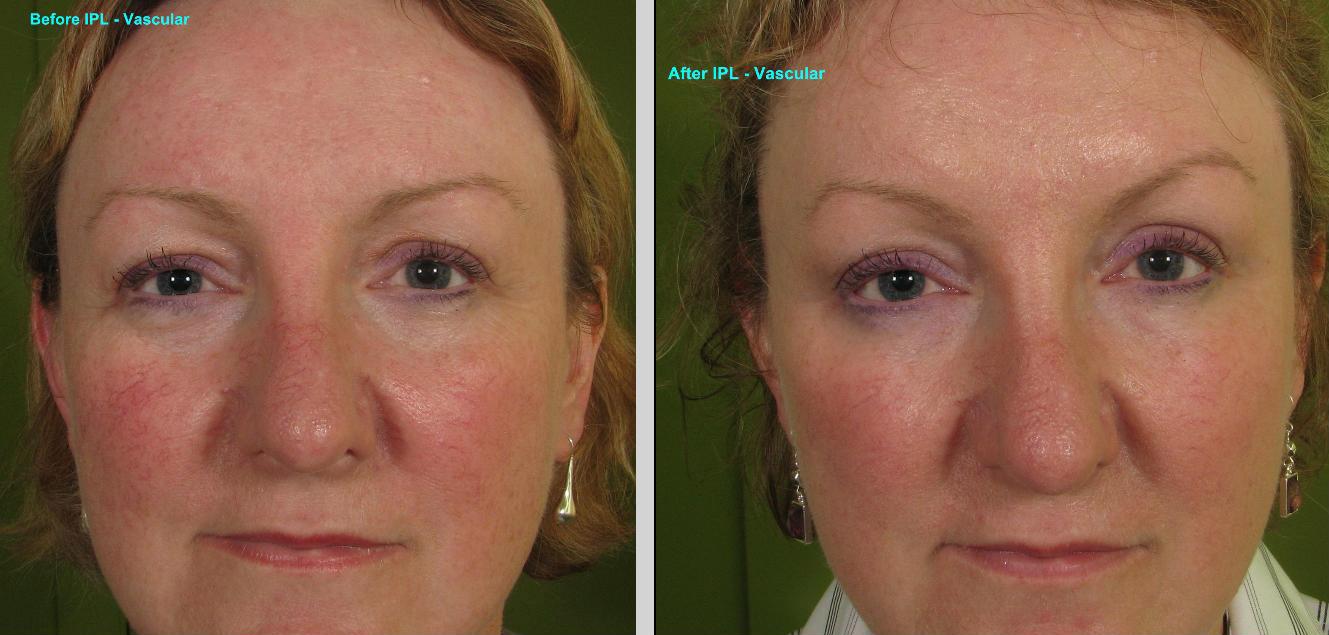 Photorejuvenation (IPL Pigment) Before & After Gallery