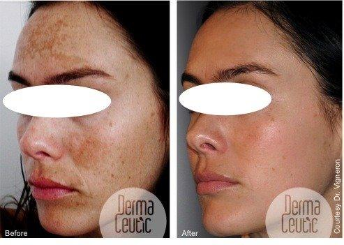 Glycolic Skin Peels & Microdermabrasion Treatments