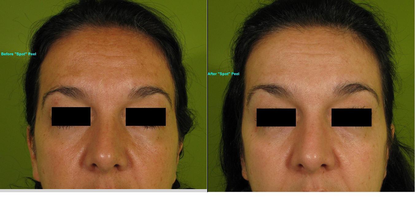 Skin Peels & Microdermabrasion