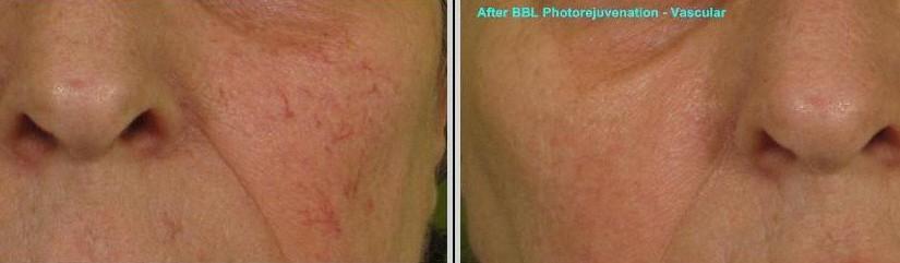 BBL-Photorejuvenation-284-B-825x241