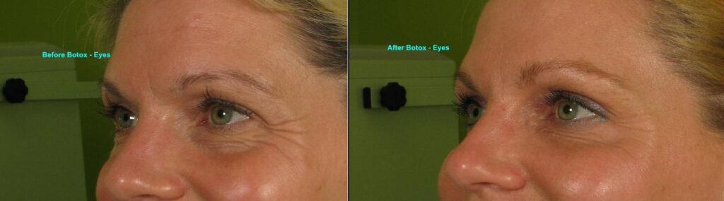 Botox reduces the fine lines around the eyes