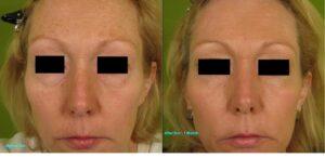 Dot-Fractional-Resurfacing-Full-Face-273-E-bar