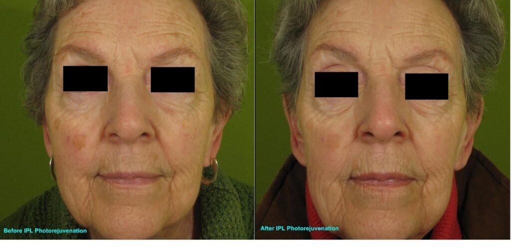 IPL-Full-face-Photorejuvenation-Pigment-142-A-bar