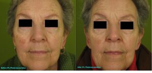 IPL-Full-face-Photorejuvenation-Pigment-142-A-bar