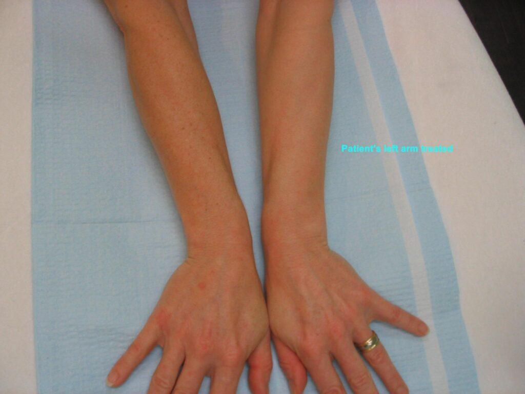IPL-Photorejuvenation-Pigment-Hands-Arms-450-S