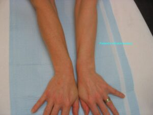 IPL-Photorejuvenation-Pigment-Hands-Arms-450-S