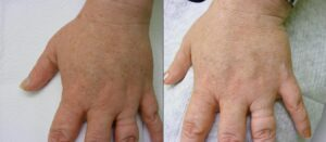 IPL-Photorejuvenation-Pigment-Left-Hand-358-P