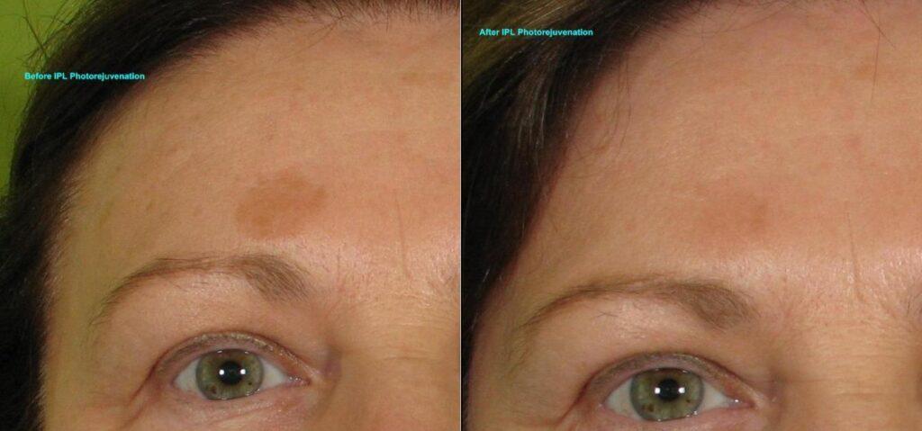 IPL-Photorejuvenation-Pigment-Partial-Forehead-119-B