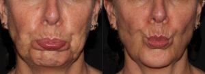 Botox reduces chin pebbling