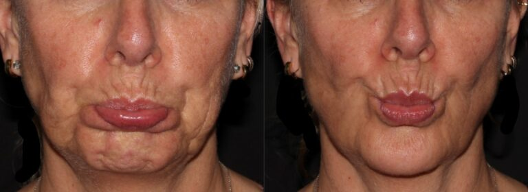 Botox reduces chin pebbling
