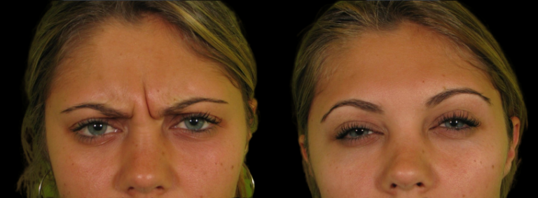 Botox to relax glabellar lines