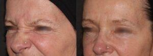 Botox to soften lines