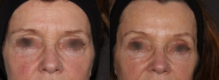 Botox lifts the brow