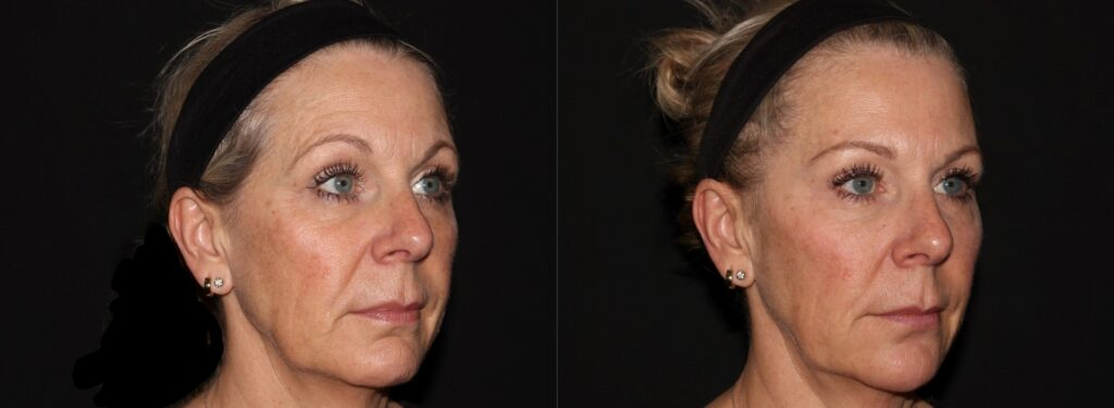 Softlift Facial Rejuvenation