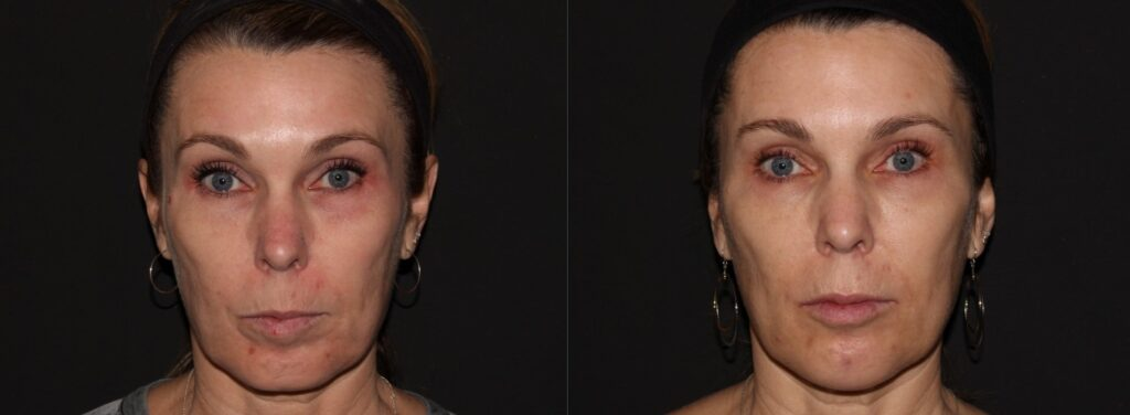 Womans photos after receiving Botox and Juvederm