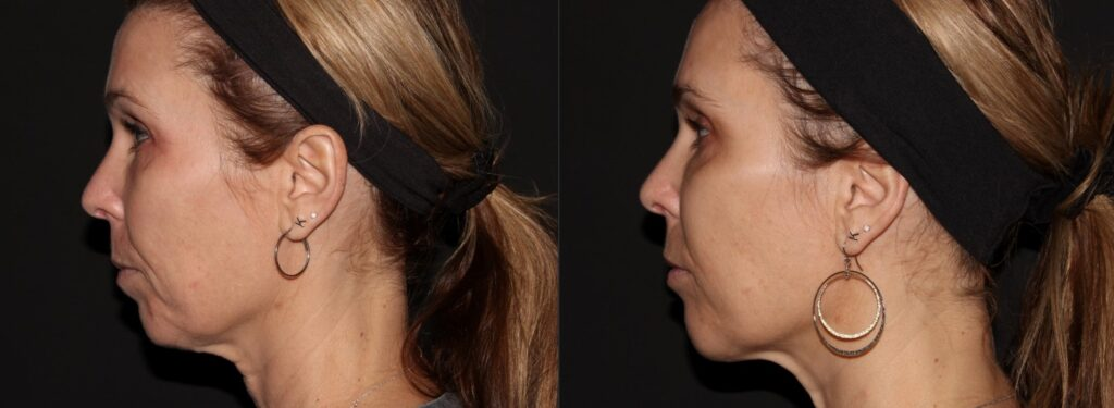 Woman has improved profile, chin proportion, contours and lifts sagging neck