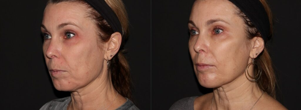 Womans cheekbones and jawlines are defined and contoured with Juvederm