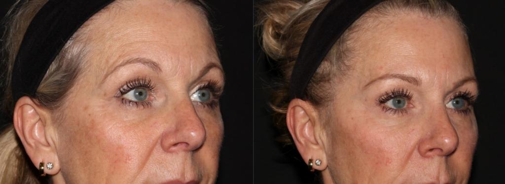 Botox - Brow lift