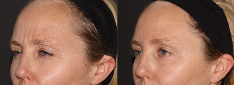 Botox - Smooths crows feet