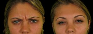 Botox - glabellar lines