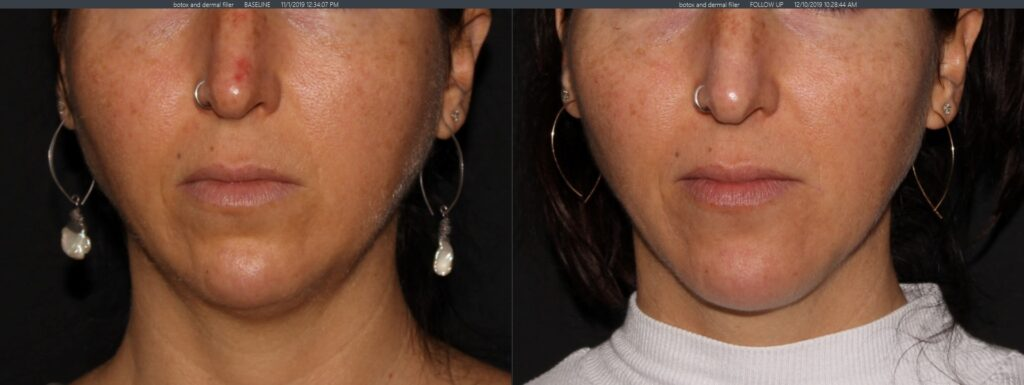 Dermal filler chin, botox brow lift