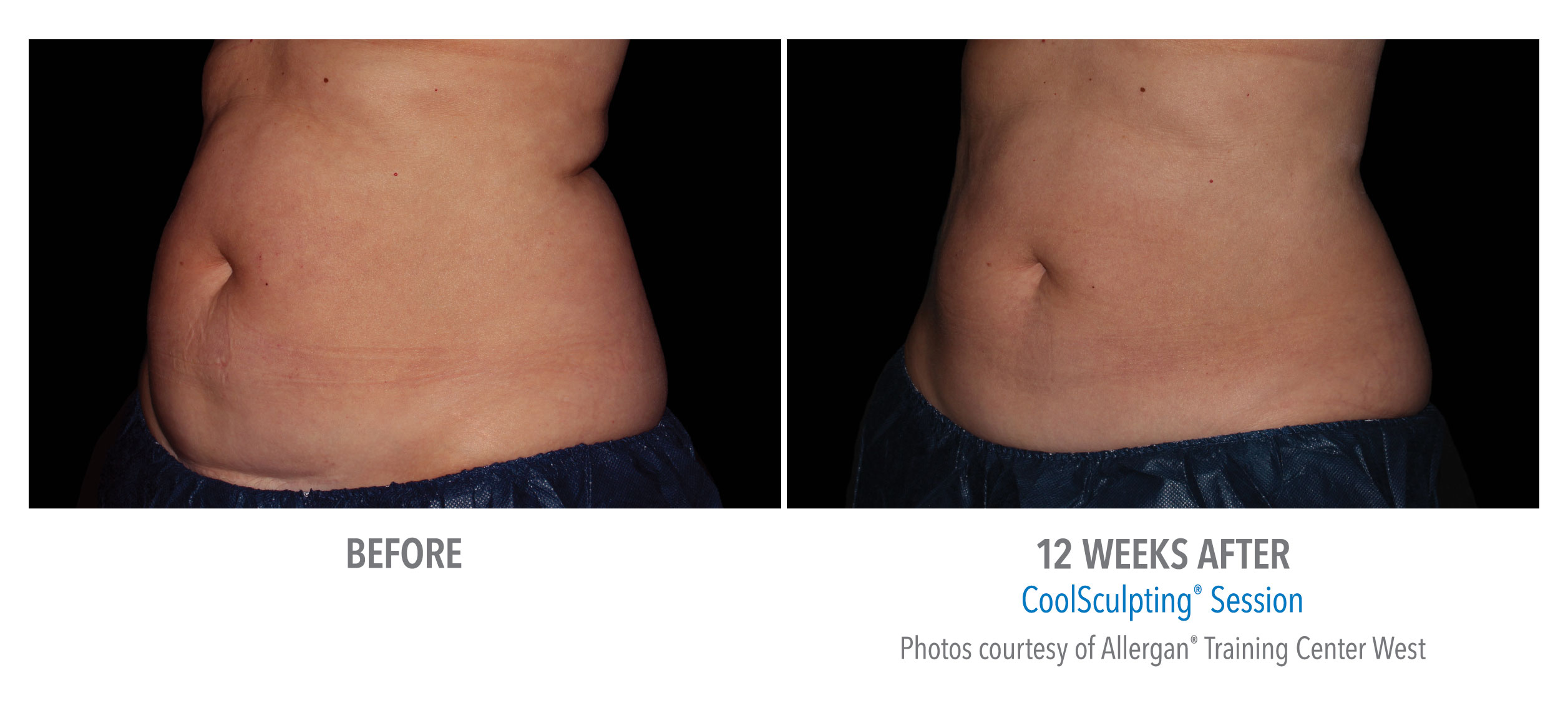 LiveYoung_CoolSculpting_BeforeAfter1