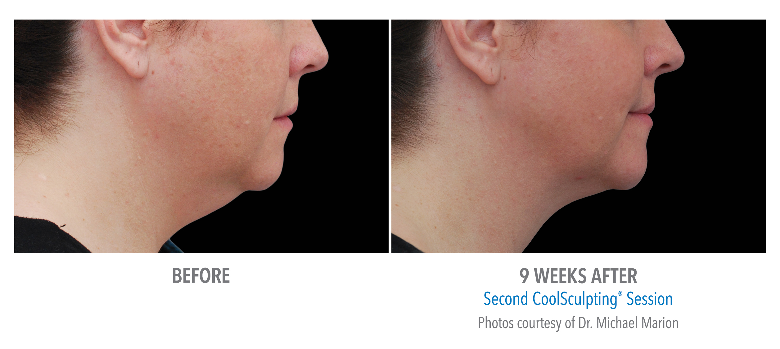 LiveYoung_CoolSculpting_BeforeAfter10