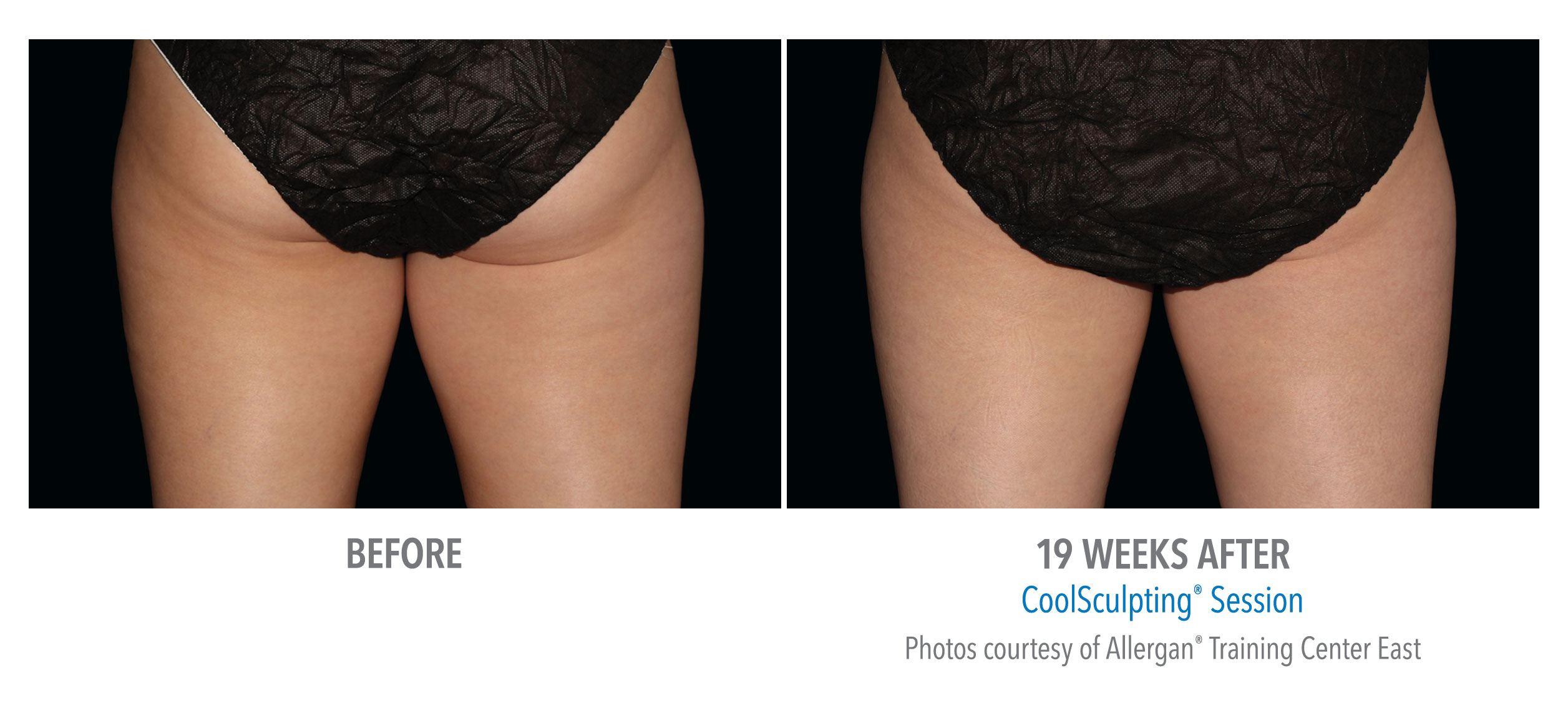 LiveYoung_CoolSculpting_BeforeAfter11