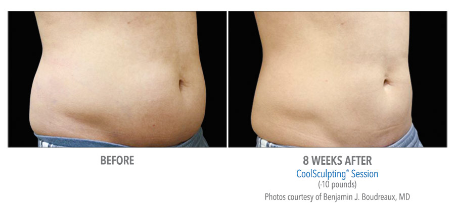 LiveYoung_CoolSculpting_BeforeAfter3