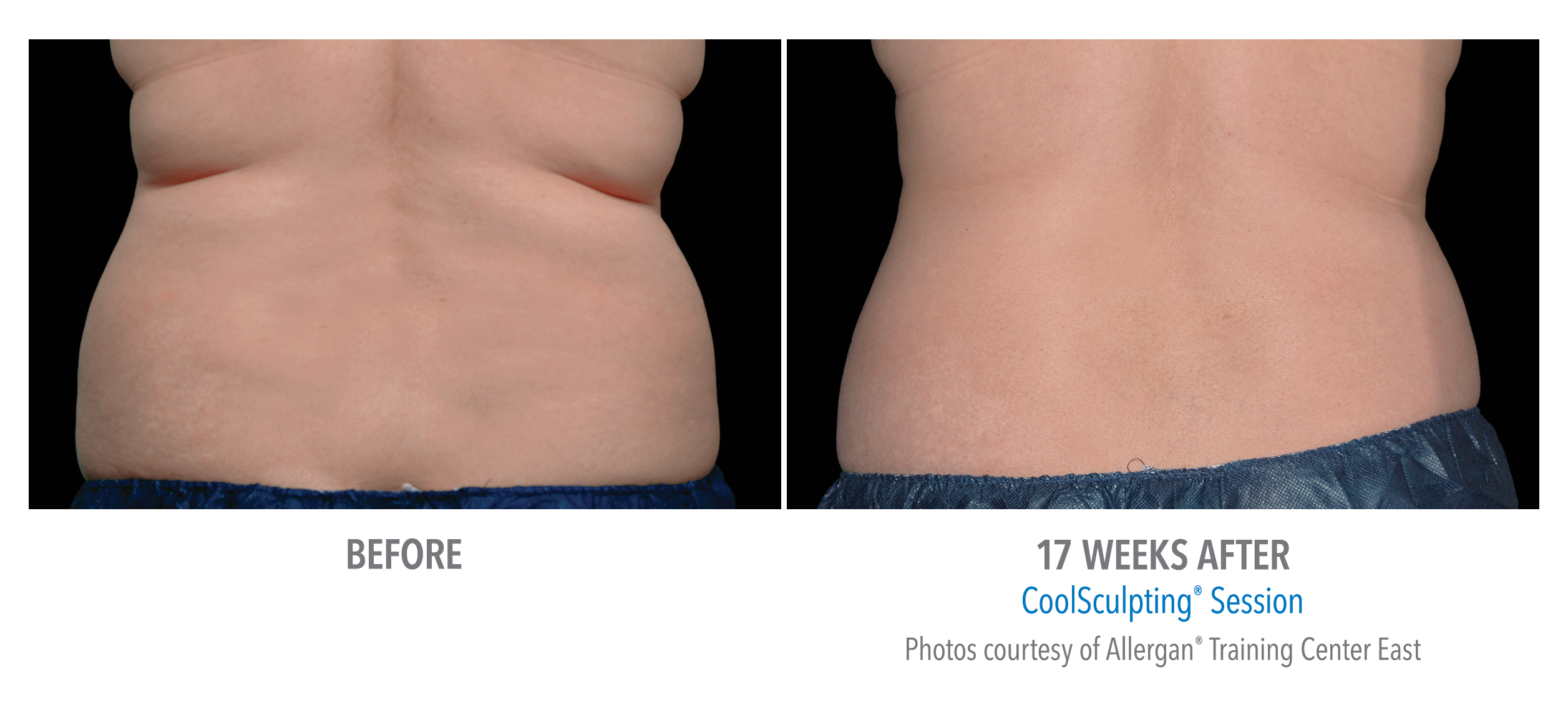 LiveYoung_CoolSculpting_BeforeAfter4