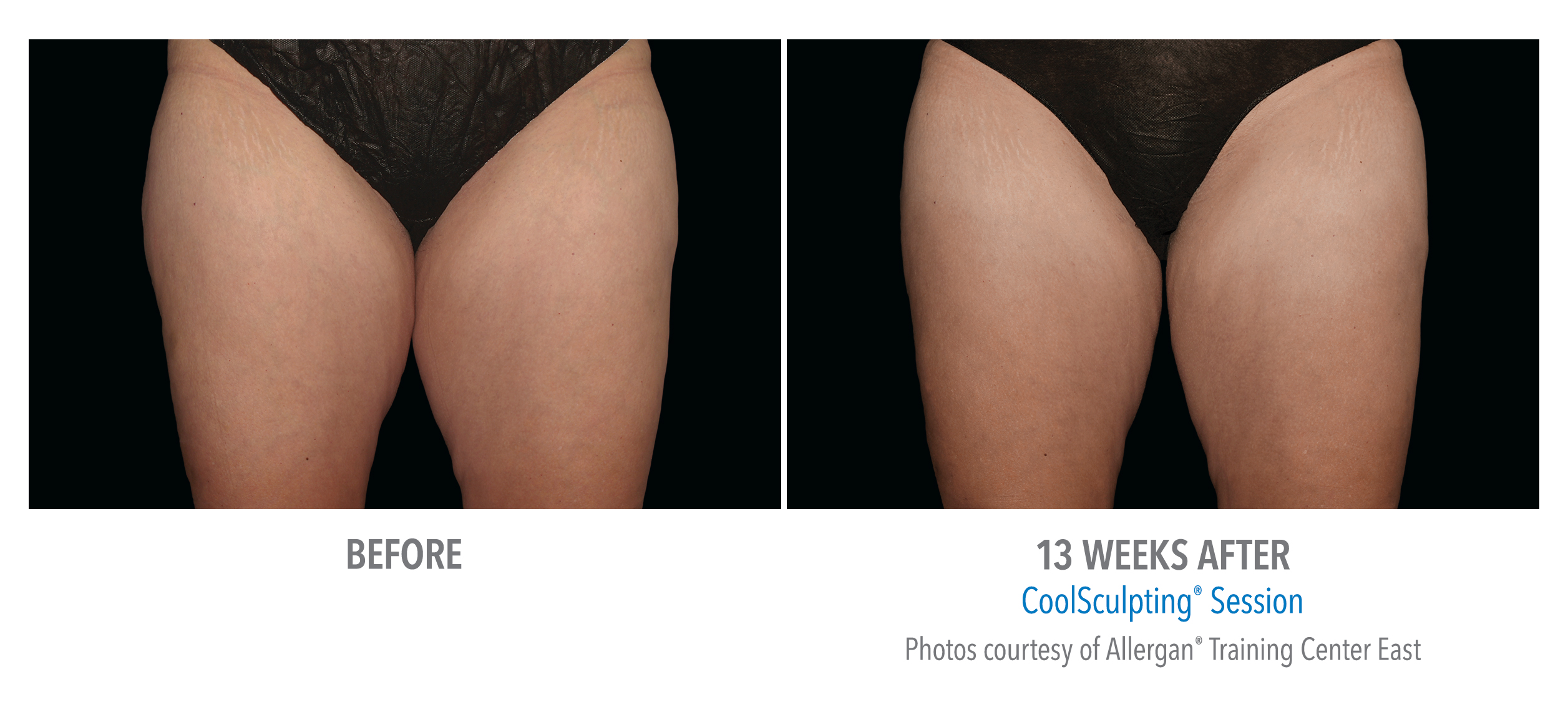 LiveYoung_CoolSculpting_BeforeAfter5