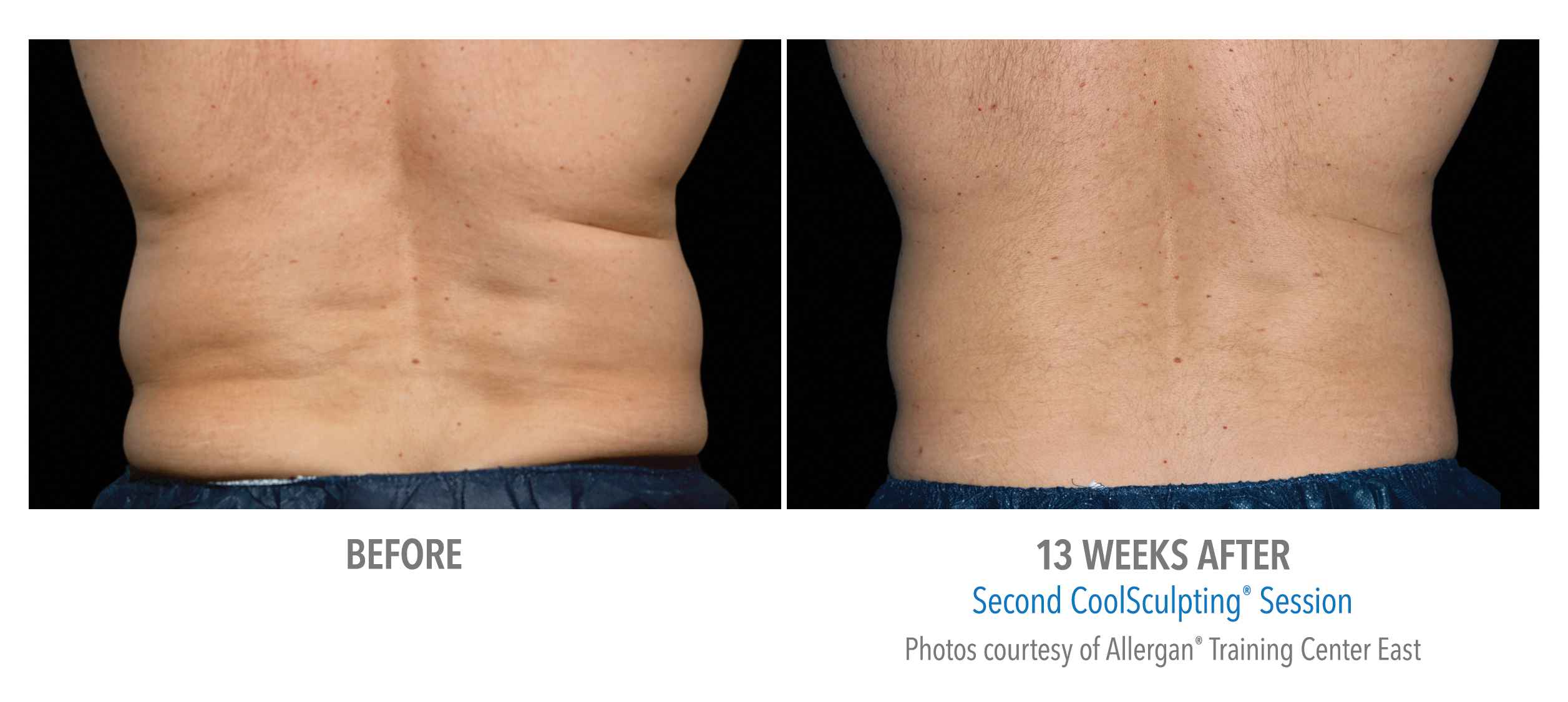 LiveYoung_CoolSculpting_BeforeAfter6