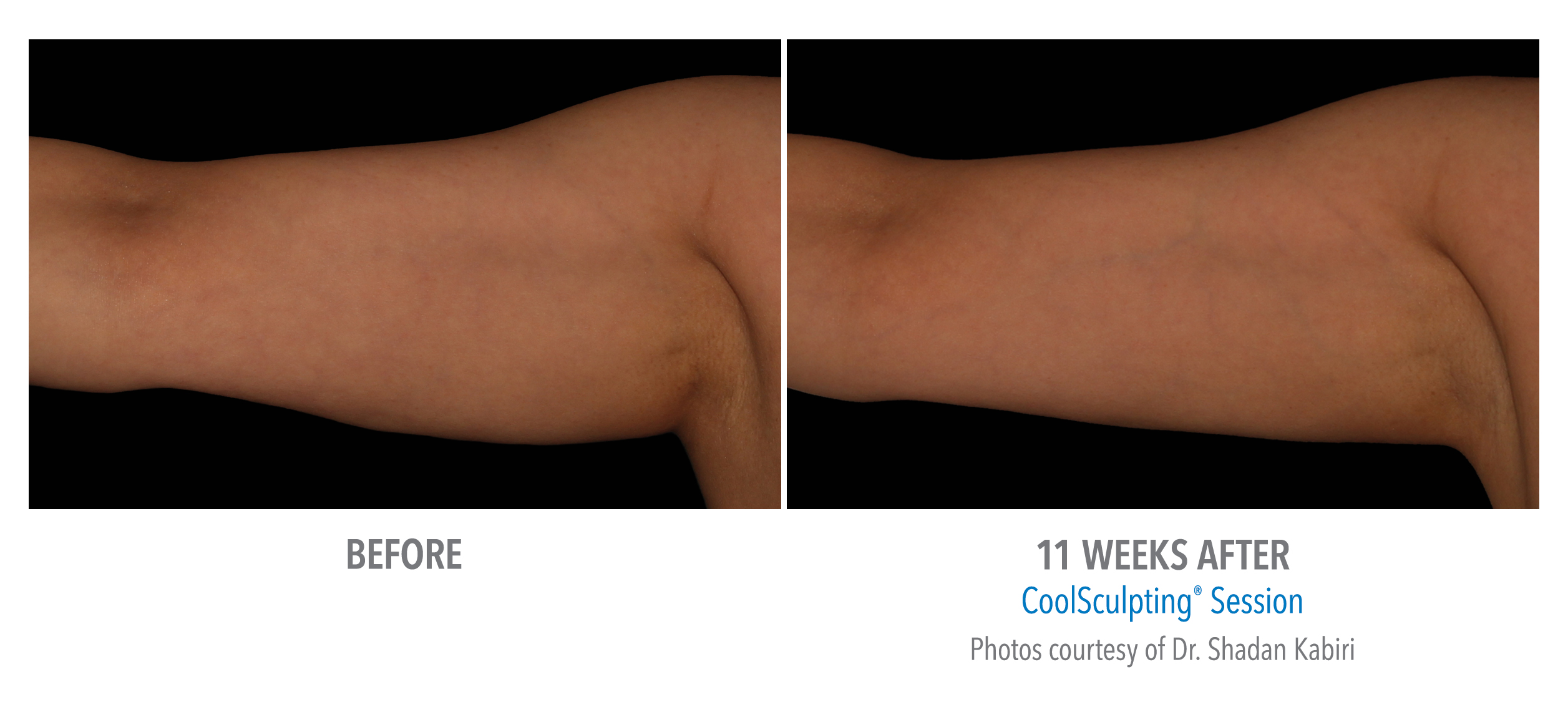 LiveYoung_CoolSculpting_BeforeAfter7