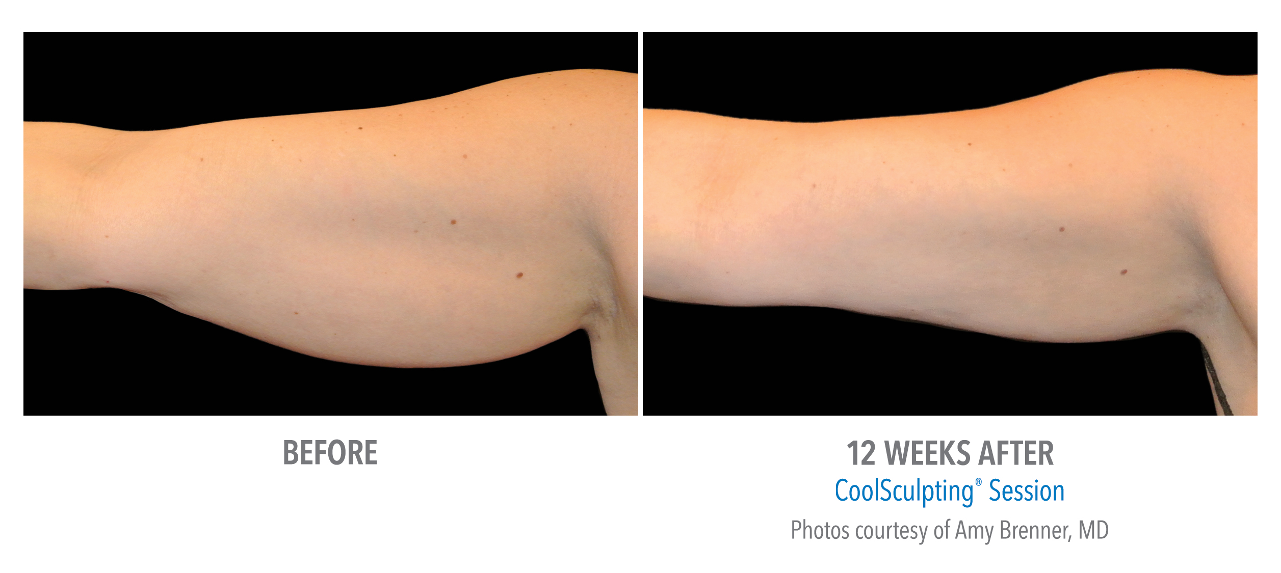 LiveYoung_CoolSculpting_BeforeAfter8