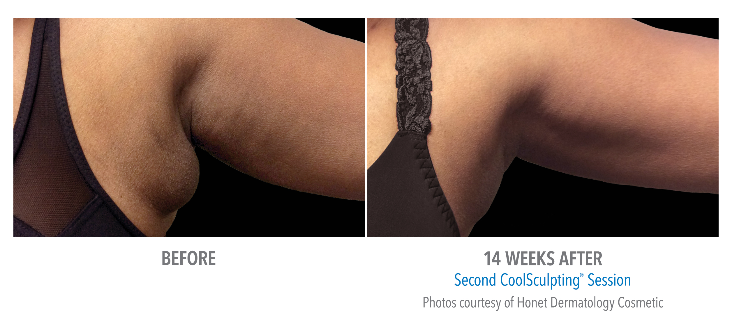 LiveYoung_CoolSculpting_BeforeAfter9